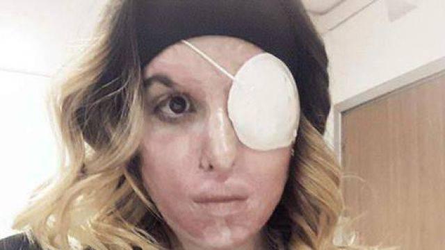 Trapianto di cornea per Gessica Notaro